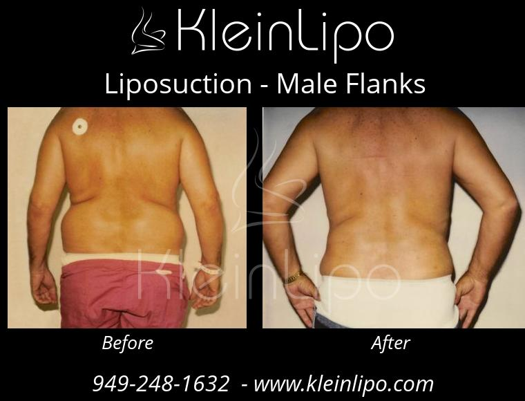 Liposuction MaleFlanks 2 27 2018 19 17 23