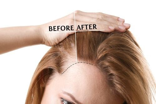PRF for Thinning Hair