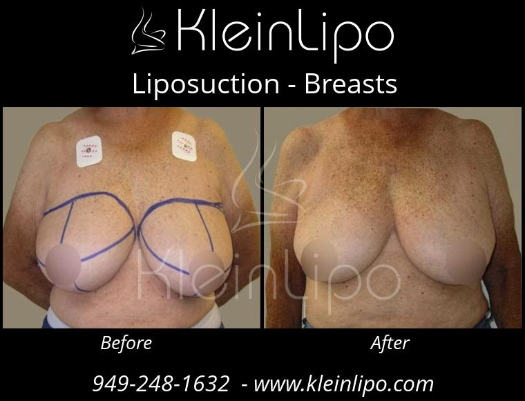 Liposuction-Breasts-10-29-2018-11-53-54