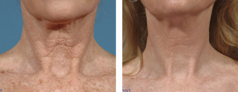neck before&after